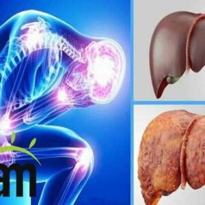 what is the symptoms of fatty liver
